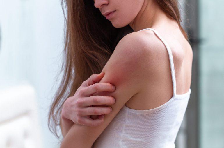 Disturbi psicosomatici. Cosa vogliono dirci le malattie della pelle?